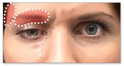 Göz yaşartan baş ağrısı