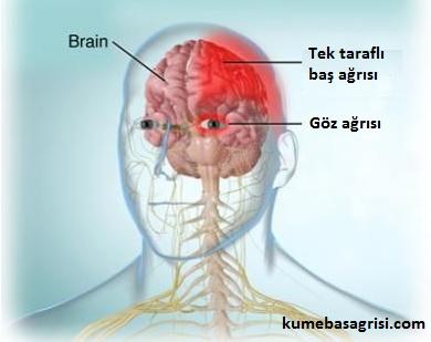 Tek taraflı baş ağrısı